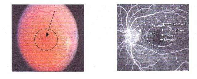 Centro Oftalmológico Carballiño la mácula