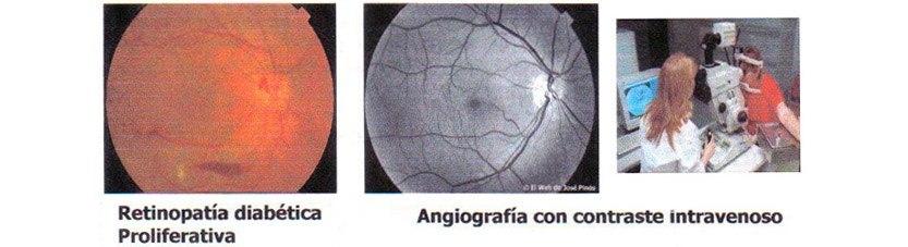 Centro Oftalmológico Carballiño retinopatía