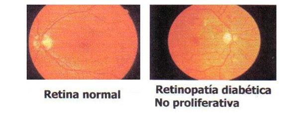Centro Oftalmológico Carballiño retina