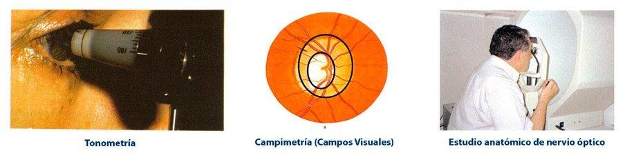 Centro Oftalmológico Carballiño nervio óptico