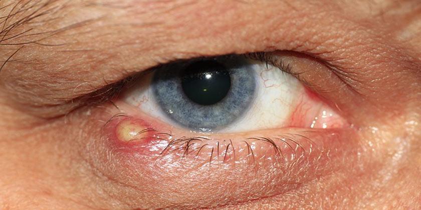 Que es un papiloma en el ojo, Que es un papiloma en el ojo - topvacanta.ro