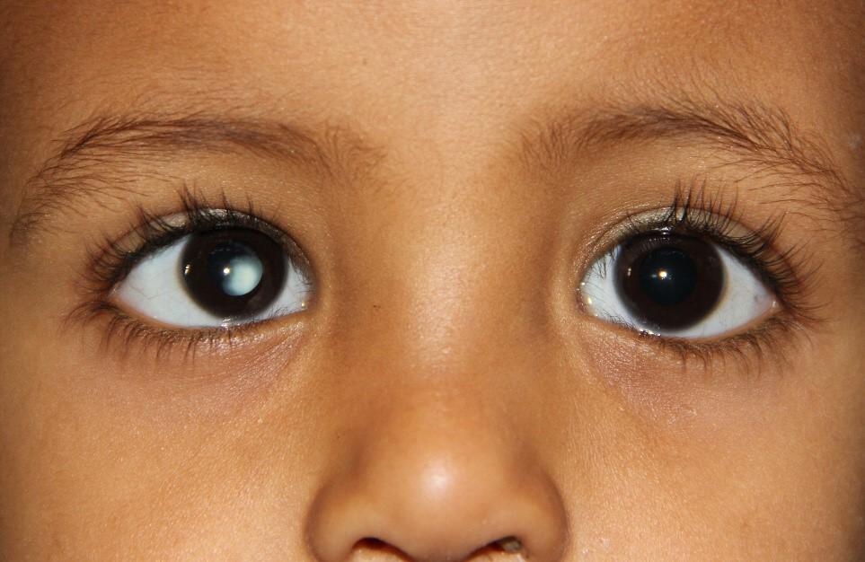 OFTALMOLOGIA INFANTIL (IV)