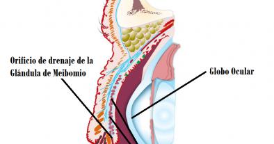 Higiene Palpebral, su importancia en caso de Disfunción de las Glándulas de Meibomio